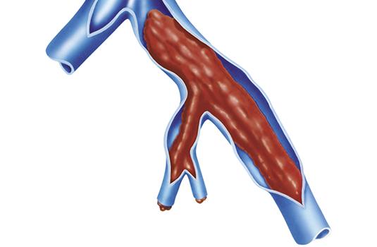 Unidad anticoagulación