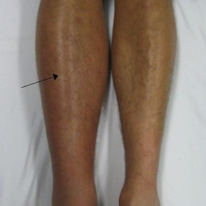 deep_vein_thrombosis_of_the_right_leg-600x600